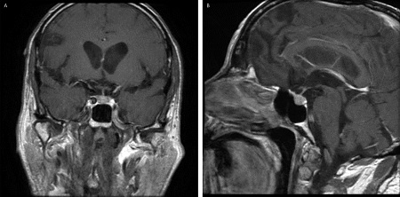Figure. T1–weighted MRI with gadolinium in the same patient as described in the Table demonstrated a modest diffuse enlargement of the pituitary gland for his age, with some heterogeneity of contrast enhancement across the gland, consistent with hypophysitis.