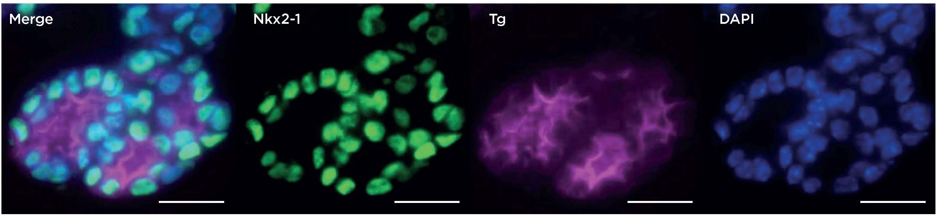 In vitro development of ESC-derived thyroid follicular cells by directed differentiation: immunofluorescence microscopy of day 30 follicular-like structures after immunostaining for Nkx2-1 and thyroglobulin (Tg). Nuclei are counterstained with DAPI; scale bars 10µm. Reproduced with permission from Figure 5F, Kurman et al. 2015 Cell Stem Cell 17 527 542